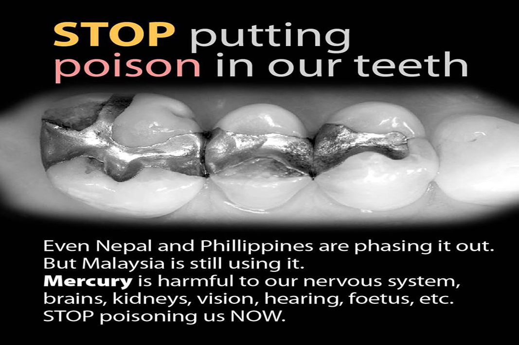 Dental amalgam contains approximately 50% mercury- But still, Malaysia is using it